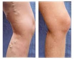 حقن الوريد بالرغوه ---علاج الدوالي للساقين وبدون جراحه