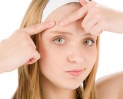 اسباب ظهور بثور الوجه وكيفية التخلص منها