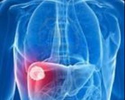 علاج اورام  الكبد ..بدون جراحه