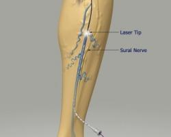 علاج دوالى الساقين بدون جراحه